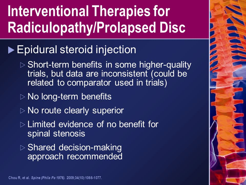 Interventional Therapies for Radiculopathy/Prolapsed Disc  Epidural steroid injection  Short-term benefits in some higher-quality trials, but data a