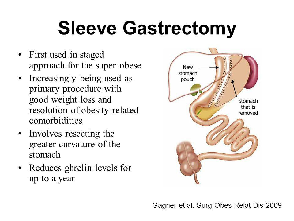 Sleeve Gastrectomy First used in staged approach for the super obese Increasingly being used as primary procedure with good weight loss and resolution