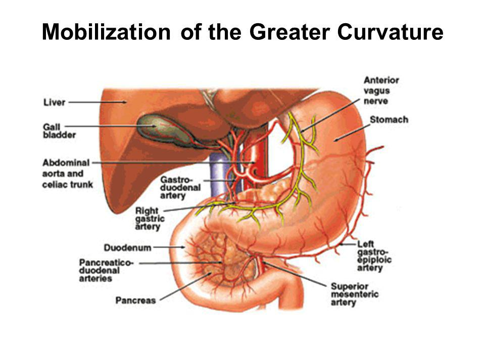 Mobilization of the Greater Curvature