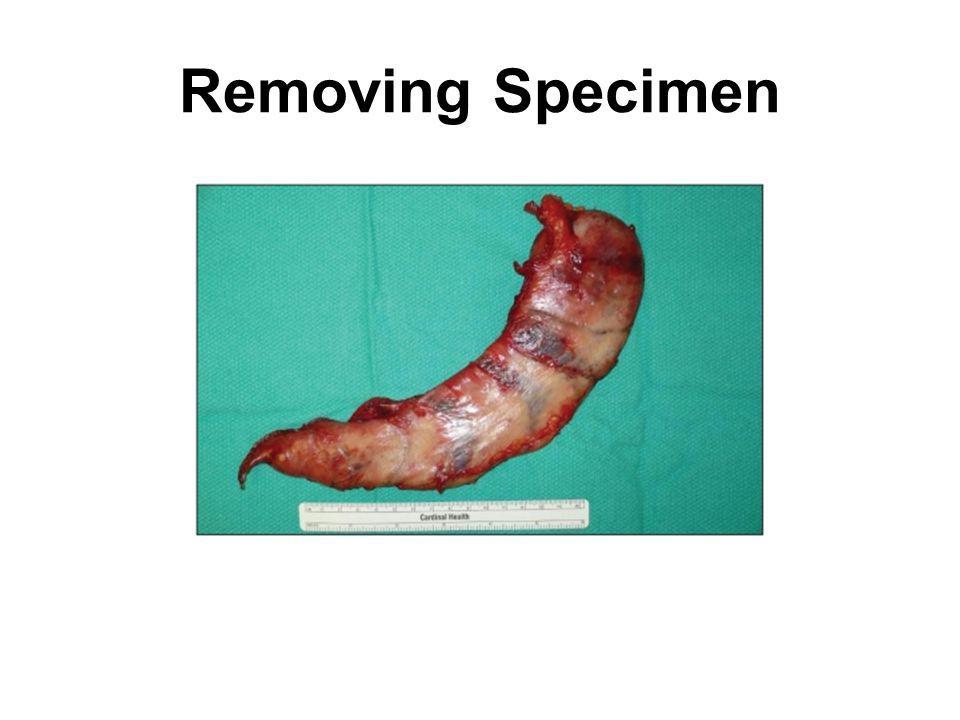 Removing Specimen