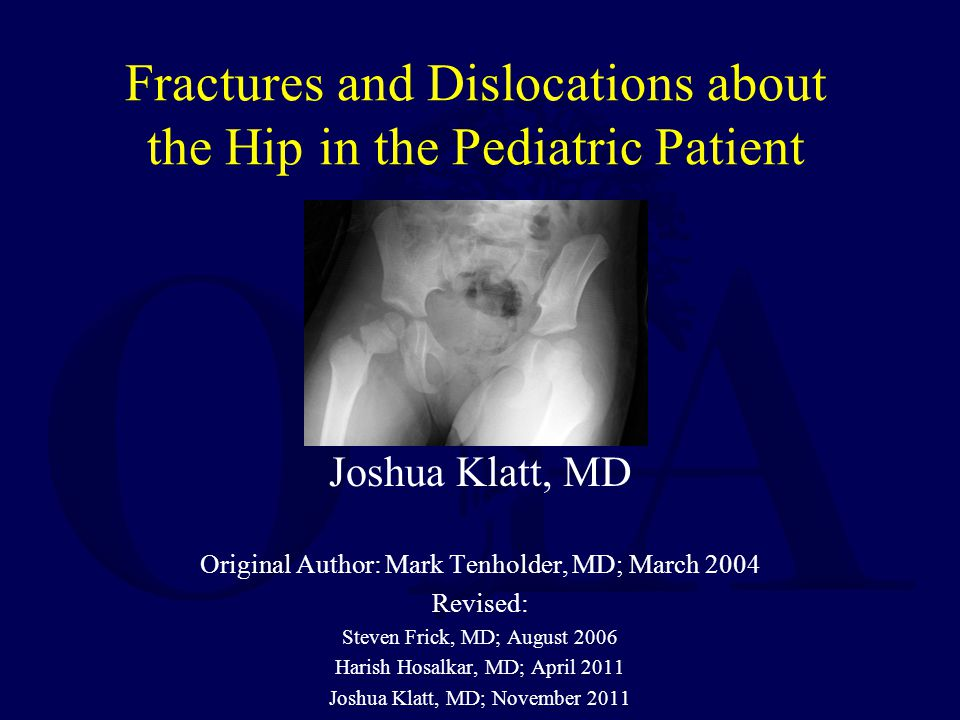 Fractures and Dislocations about the Hip in the Pediatric Patient Joshua Klatt, MD Original Author: Mark Tenholder, MD; March 2004 Revised: Steven Fri