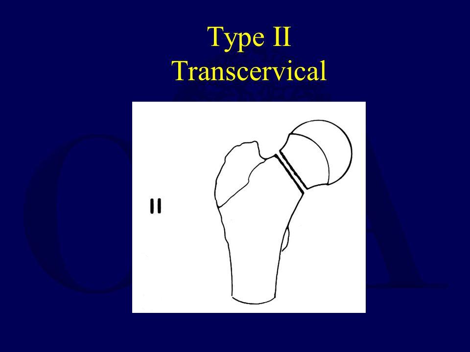 Type II Transcervical