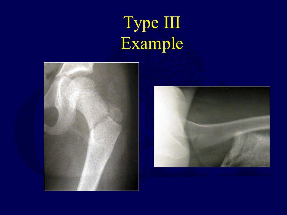 Type III Example