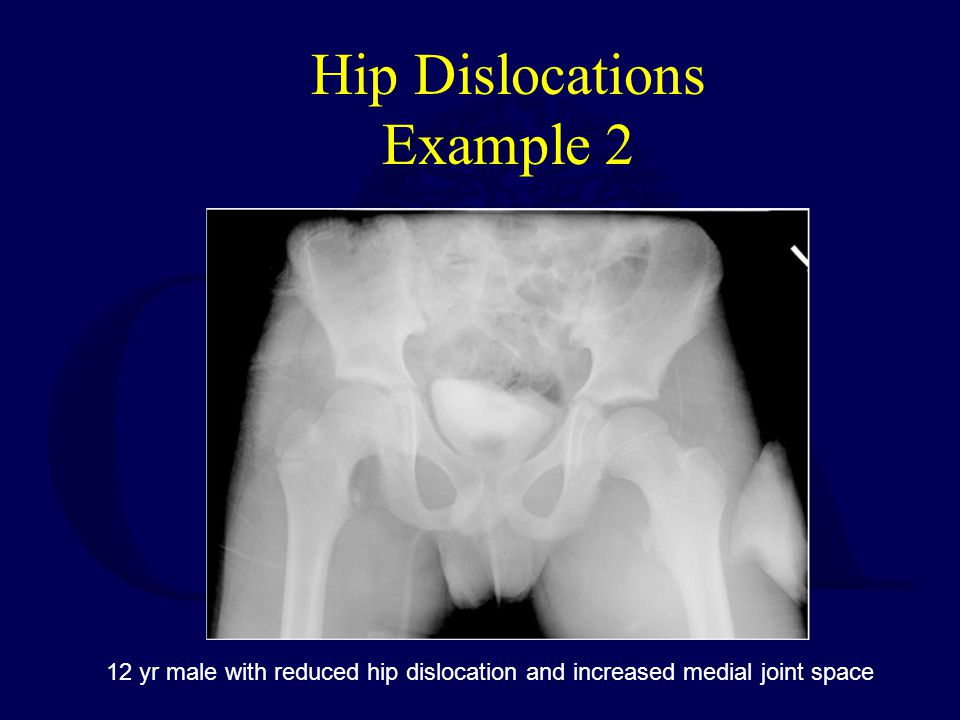 Hip Dislocations Example 2 12 yr male with reduced hip dislocation and increased medial joint space