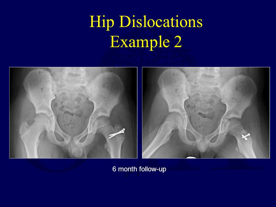 Hip Dislocations Example 2 6 month follow-up
