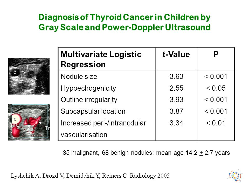 Diagnosis of Thyroid Cancer in Children by Gray Scale and Power-Doppler Ultrasound Lyshchik A, Drozd V, Demidchik Y, Reiners C Radiology 2005 Multivar
