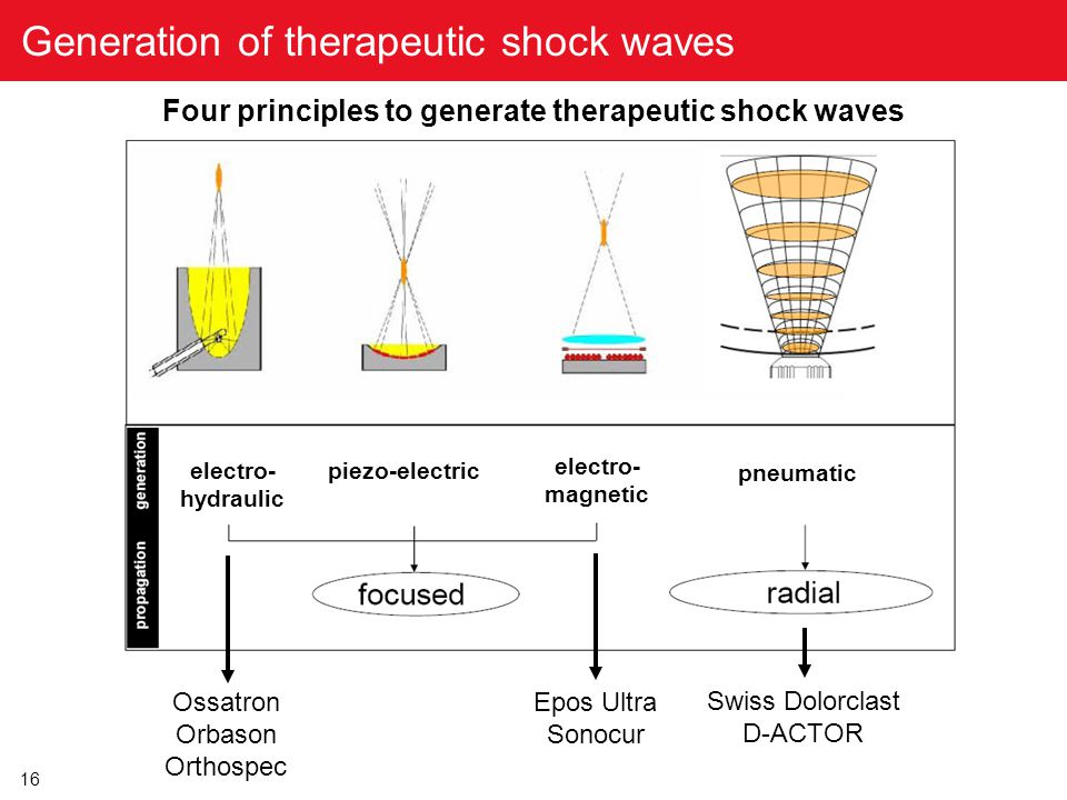 16 Generation of therapeutic shock waves piezo-electric electro- hydraulic electro- magnetic pneumatic Four principles to generate therapeutic shock w
