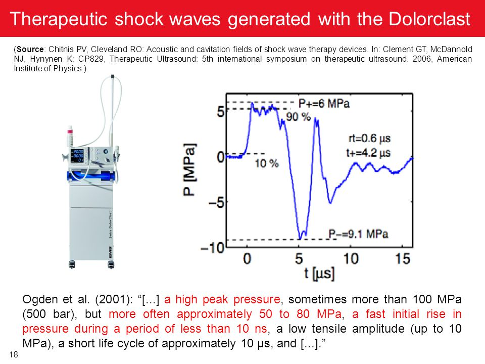 18 Therapeutic shock waves generated with the Dolorclast (Source: Chitnis PV, Cleveland RO: Acoustic and cavitation fields of shock wave therapy devic