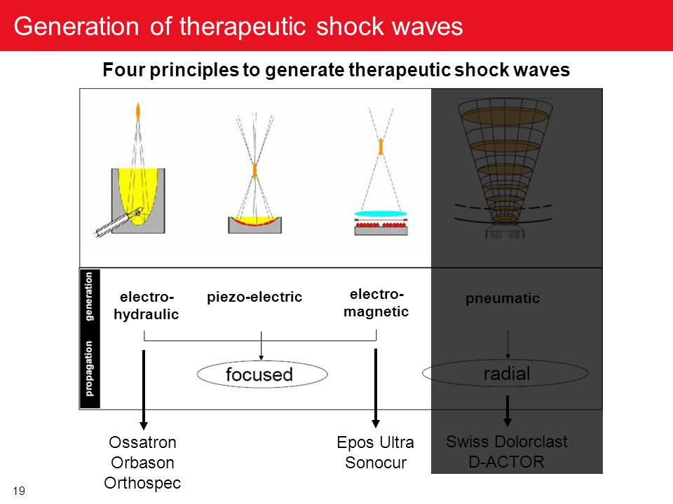 19 Generation of therapeutic shock waves piezo-electric electro- hydraulic electro- magnetic pneumatic Four principles to generate therapeutic shock w