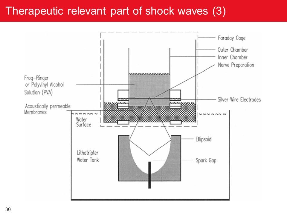 30 Therapeutic relevant part of shock waves (3)