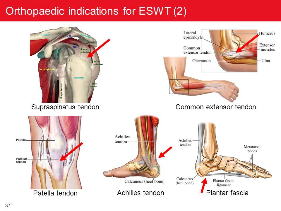 37 Orthopaedic indications for ESWT (2) Supraspinatus tendon Common extensor tendon Patella tendon Achilles tendon Plantar fascia