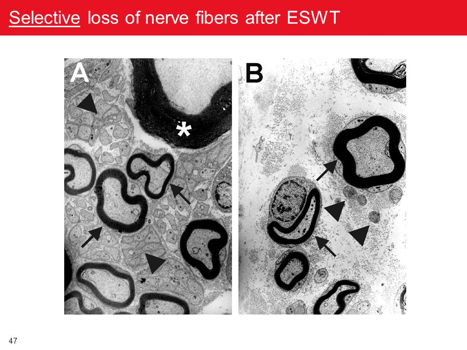 47 Selective loss of nerve fibers after ESWT