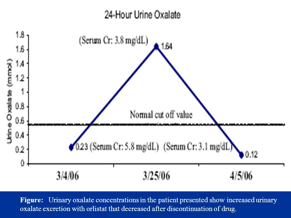 Figure: Urinary oxalate concentrations in the patient presented show increased urinary oxalate excretion with orlistat that decreased after discontinuation of drug.