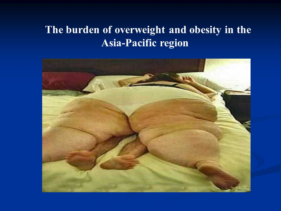 The burden of overweight and obesity in the Asia-Pacific region