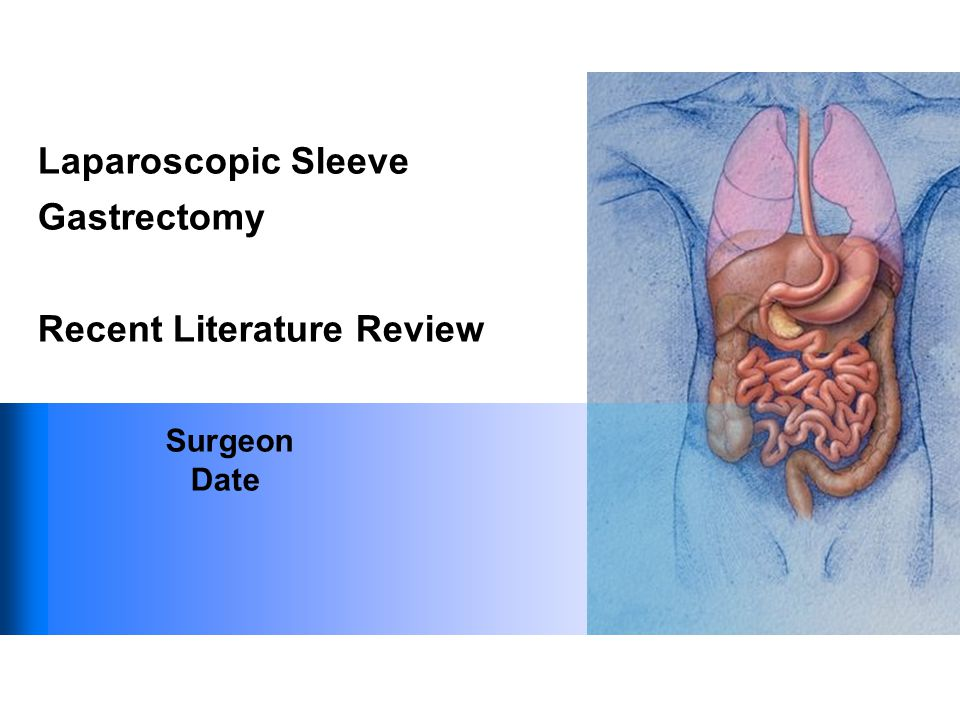 Laparoscopic Sleeve Gastrectomy Recent Literature Review Surgeon Date