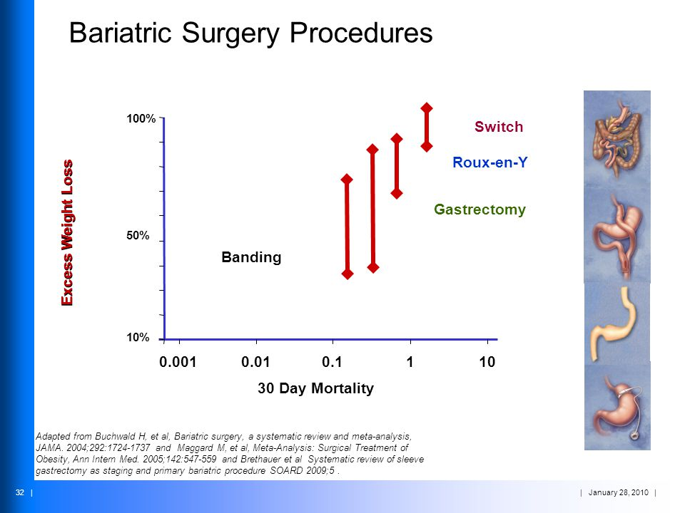| January 28, 2010 | 32 | Bariatric Surgery Procedures 30 Day Mortality Adapted from Buchwald H, et al, Bariatric surgery, a systematic review and met