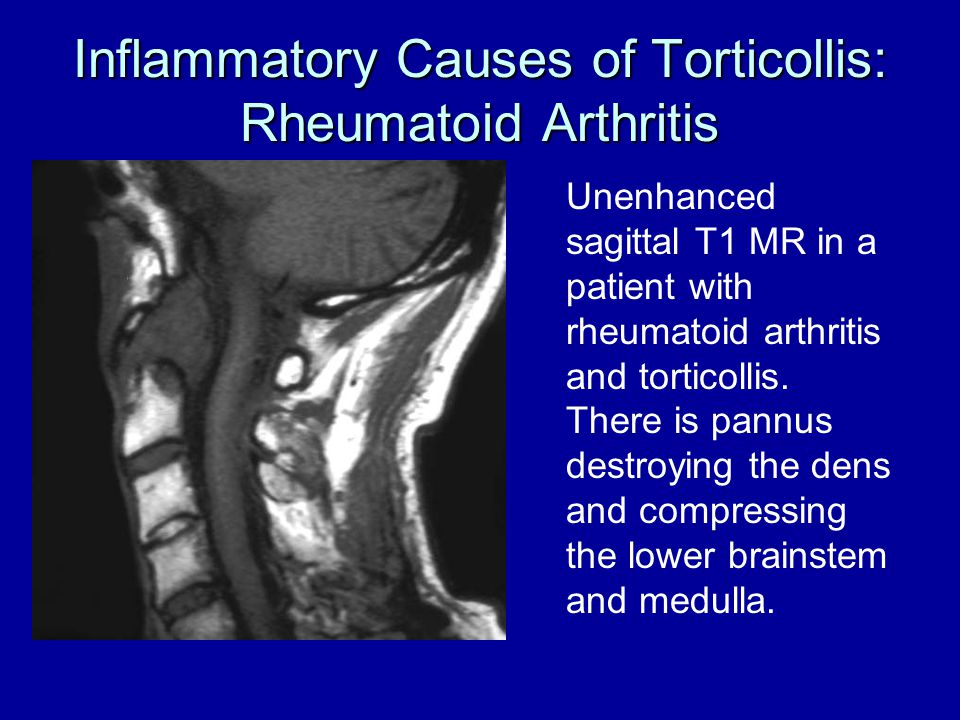 Inflammatory Causes of Torticollis: Rheumatoid Arthritis Unenhanced sagittal T1 MR in a patient with rheumatoid arthritis and torticollis. There is pa