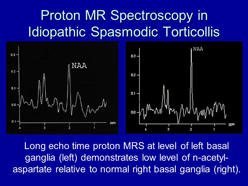 Proton MR Spectroscopy in Idiopathic Spasmodic Torticollis Long echo time proton MRS at level of left basal ganglia (left) demonstrates low level of n