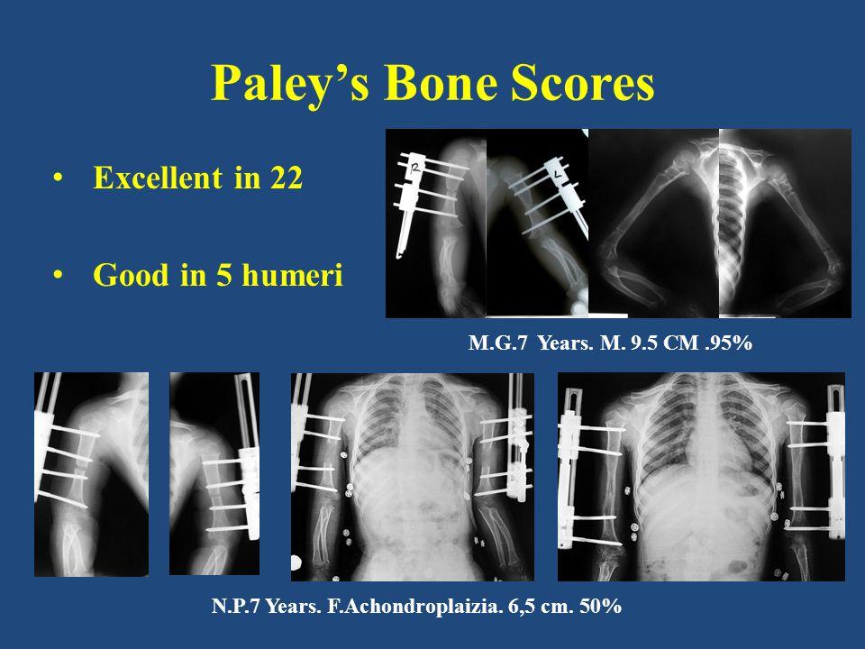 Paley's Bone Scores Excellent in 22 Good in 5 humeri N.P.7 Years. F.Achondroplaizia. 6,5 cm. 50% M.G.7 Years. M. 9.5 CM.95%