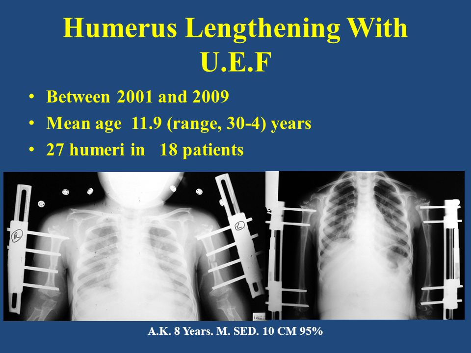 Humerus Lengthening With U.E.F Between 2001 and 2009 Mean age 11.9 (range, 30-4) years 27 humeri in 18 patients A.K.
