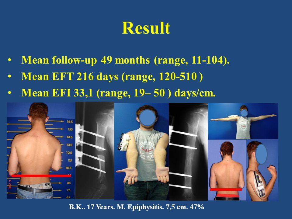 Result Mean follow-up 49 months (range, 11-104). Mean EFT 216 days (range, 120-510 ) Mean EFI 33,1 (range, 19– 50 ) days/cm. B.K.. 17 Years. M. Epiphy