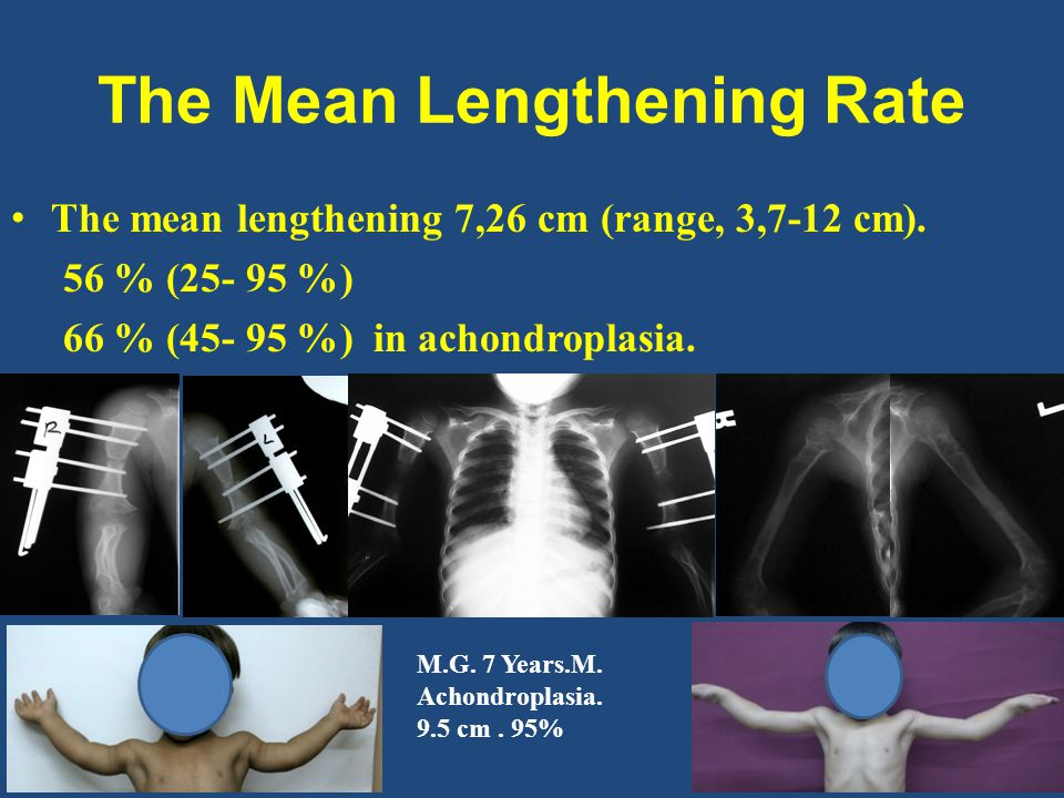 The Mean Lengthening Rate The mean lengthening 7,26 cm (range, 3,7-12 cm).
