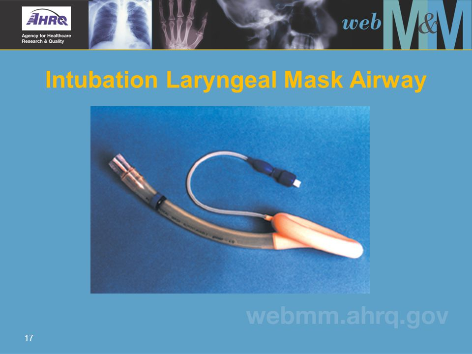 17 Intubation Laryngeal Mask Airway