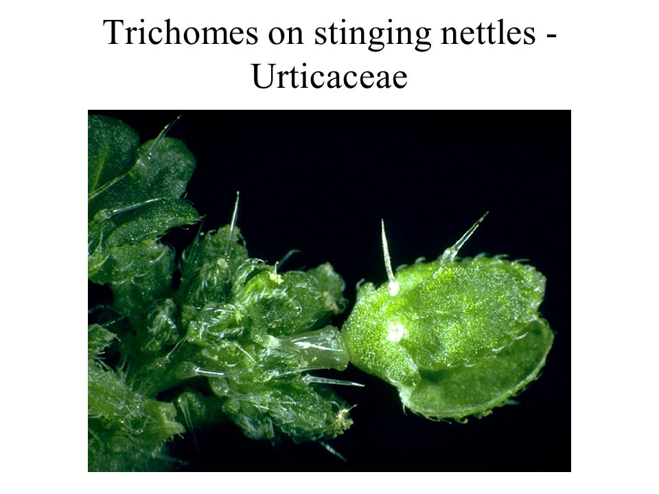 Trichomes on stinging nettles - Urticaceae