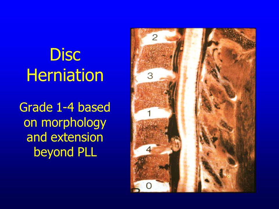 Disc Herniation Grade 1-4 based on morphology and extension beyond PLL