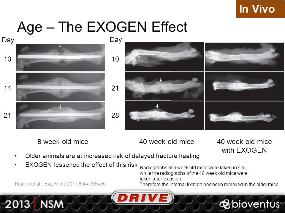 Age – The EXOGEN Effect 10 14 21 Day 8 week old mice40 week old mice with EXOGEN In Vivo Older animals are at increased risk of delayed fracture heali