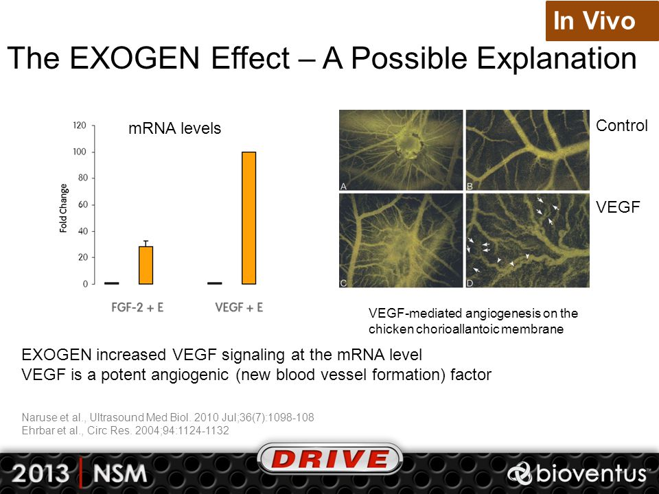 The EXOGEN Effect – A Possible Explanation Naruse et al., Ultrasound Med Biol. 2010 Jul;36(7):1098-108 Ehrbar et al., Circ Res. 2004;94:1124-1132 In V