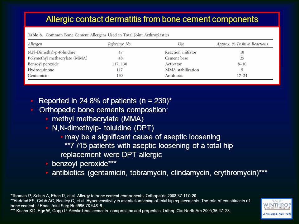 Allergic contact dermatitis from bone cement components Reported in 24.8% of patients (n = 239)* Orthopedic bone cements composition: methyl methacrylate (MMA) N,N-dimethylp- toluidine (DPT) may be a significant cause of aseptic loosening **7 /15 patients with aseptic loosening of a total hip replacement were DPT allergic benzoyl peroxide*** antibiotics (gentamicin, tobramycin, clindamycin, erythromycin)*** *Thomas P, Schuh A, Eben R, et al.
