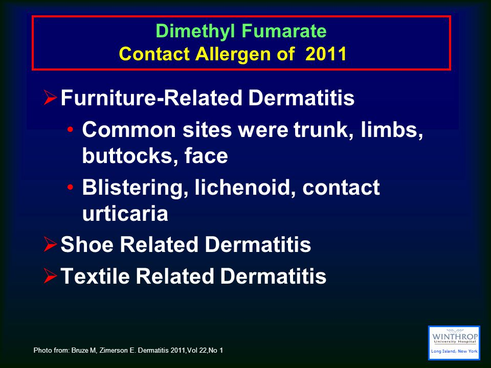 Dimethyl Fumarate Contact Allergen of 2011  Furniture-Related Dermatitis Common sites were trunk, limbs, buttocks, face Blistering, lichenoid, contact urticaria  Shoe Related Dermatitis  Textile Related Dermatitis Photo from: Bruze M, Zimerson E.