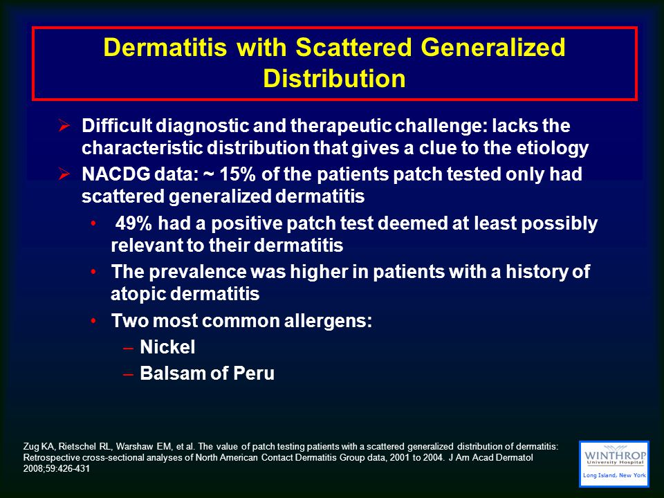 Dermatitis with Scattered Generalized Distribution  Difficult diagnostic and therapeutic challenge: lacks the characteristic distribution that gives a clue to the etiology  NACDG data: ~ 15% of the patients patch tested only had scattered generalized dermatitis 49% had a positive patch test deemed at least possibly relevant to their dermatitis The prevalence was higher in patients with a history of atopic dermatitis Two most common allergens: –Nickel –Balsam of Peru Zug KA, Rietschel RL, Warshaw EM, et al.
