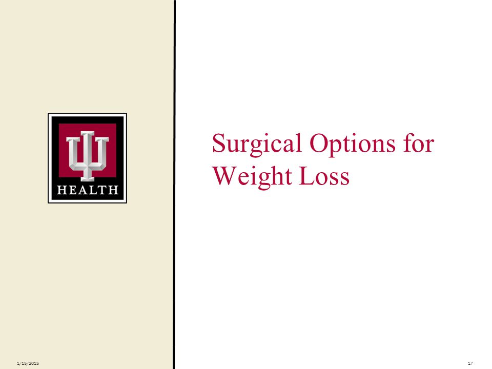 Surgical Options for Weight Loss 1/15/201517