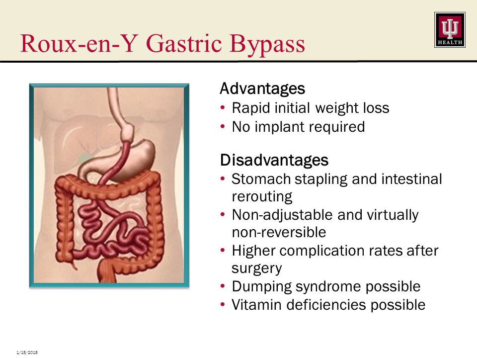 Roux-en-Y Gastric Bypass 1/15/2015 Advantages Rapid initial weight loss No implant required Disadvantages Stomach stapling and intestinal rerouting Non-adjustable and virtually non-reversible Higher complication rates after surgery Dumping syndrome possible Vitamin deficiencies possible