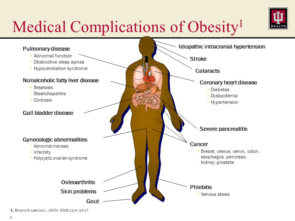 Widely Accepted That Obesity Is Associated With Increased Morbidity Nguyen NT et al.