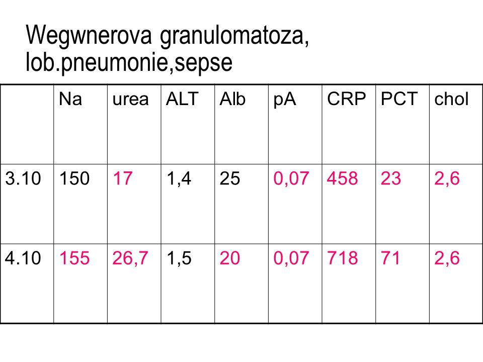 Wegwnerova granulomatoza, lob.pneumonie,sepse NaureaALTAlbpACRPPCTchol 3.10150171,4250,07458232,6 4.1015526,71,5200,07718712,6