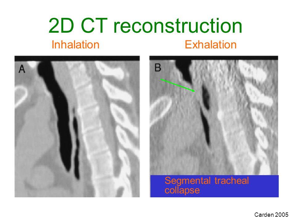 Carden 2005 2D CT reconstruction Inhalation Exhalation Segmental tracheal collapse