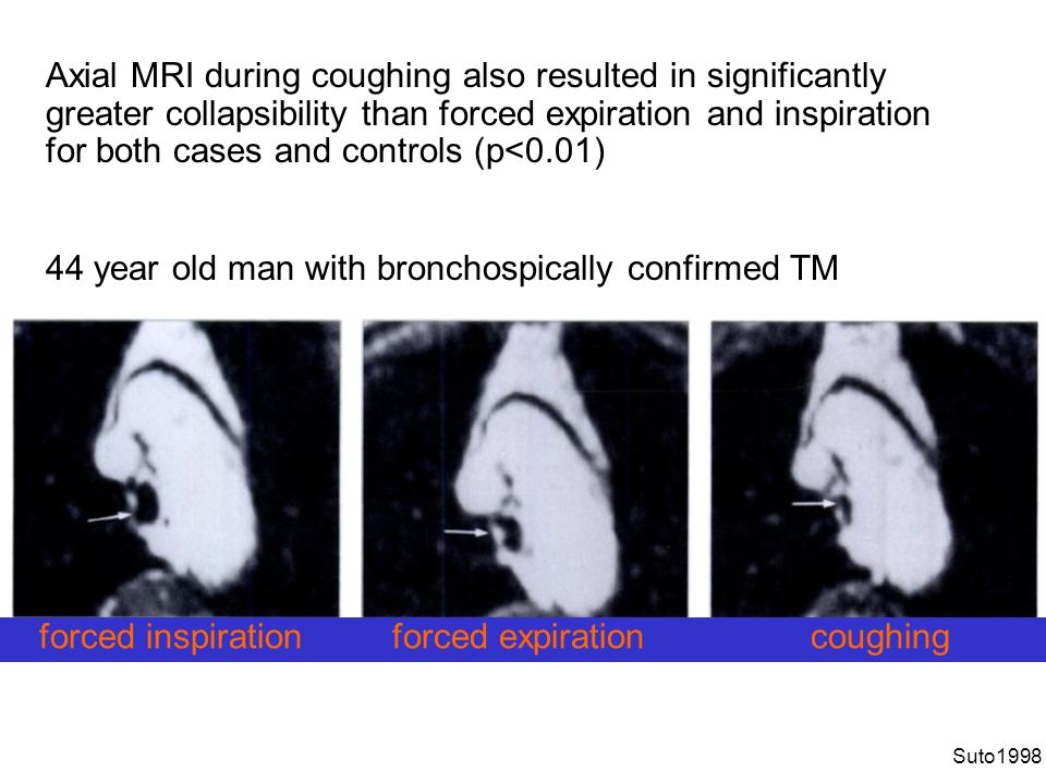 Axial MRI during coughing also resulted in significantly greater collapsibility than forced expiration and inspiration for both cases and controls (p<