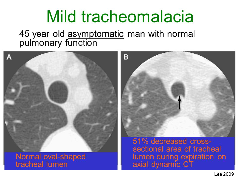 Lee 2009 Mild tracheomalacia 45 year old asymptomatic man with normal pulmonary function 51% decreased cross- sectional area of tracheal lumen during
