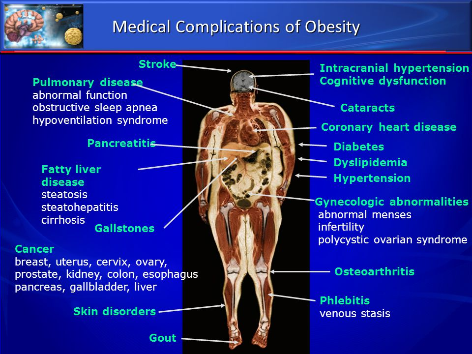 Medical Complications of Obesity Phlebitis venous stasis Coronary heart disease Pulmonary disease abnormal function obstructive sleep apnea hypoventil