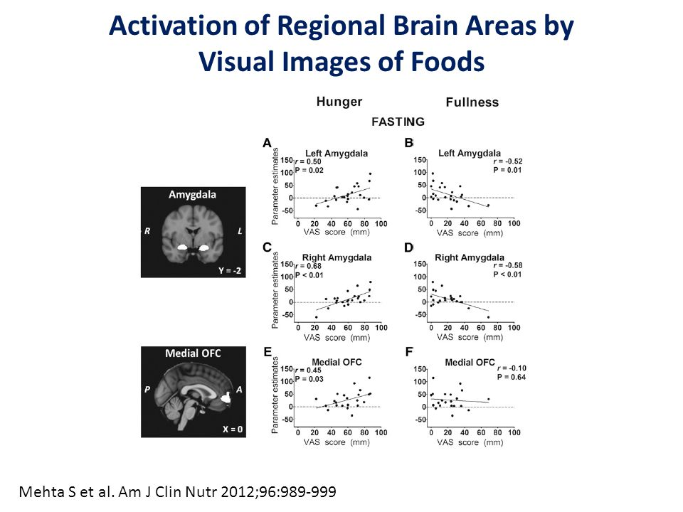 Activation of Regional Brain Areas by Visual Images of Foods Mehta S et al. Am J Clin Nutr 2012;96:989-999