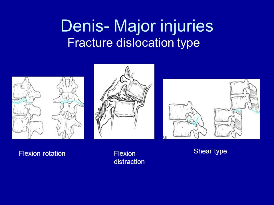 Fracture dislocation type Denis- Major injuries Flexion rotationFlexion distraction Shear type