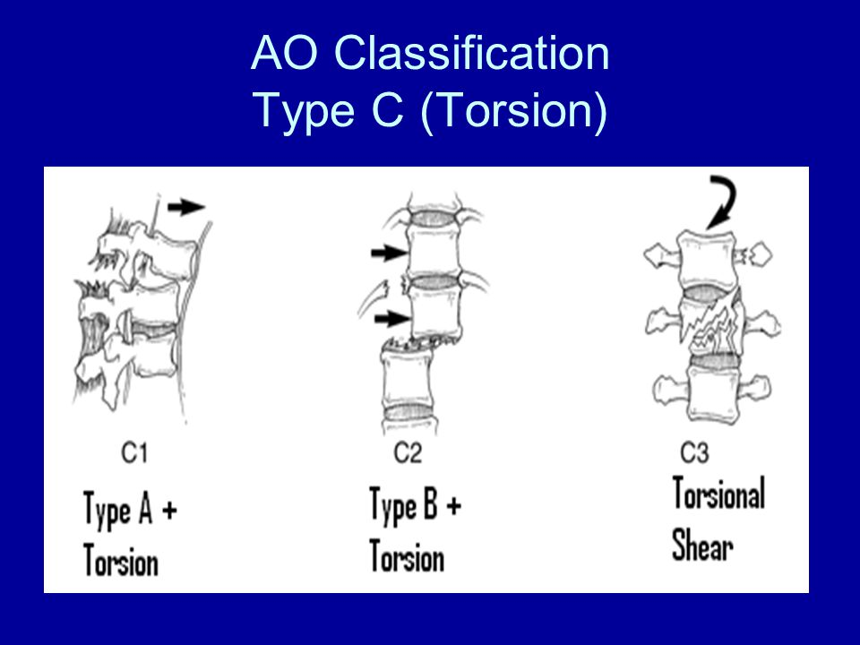 AO Classification Type C (Torsion)