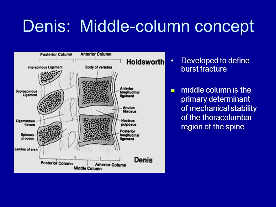 Denis: Middle-column concept Developed to define burst fracture middle column is the primary determinant of mechanical stability of the thoracolumbar