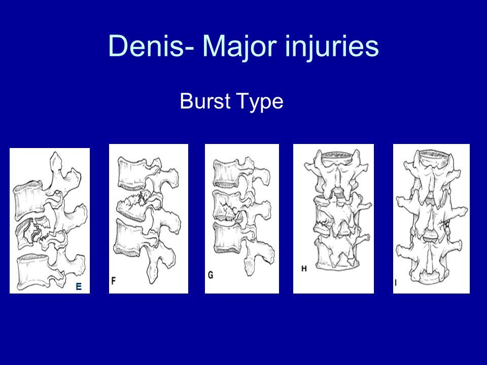 Denis- Major injuries Burst Type E