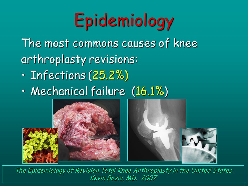The most commons causes of knee arthroplasty revisions: Infections (25.2%)Infections (25.2%) Mechanical failure (16.1%)Mechanical failure (16.1%) The Epidemiology of Revision Total Knee Arthroplasty in the United States Kevin Bozic, MD.