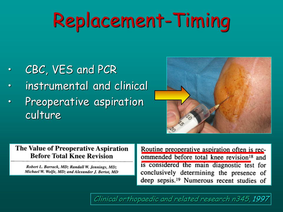 CBC, VES and PCRCBC, VES and PCR instrumental and clinicalinstrumental and clinical Preoperative aspiration culturePreoperative aspiration culture Replacement-Timing Clinical orthopaedic and related research n345, 1997