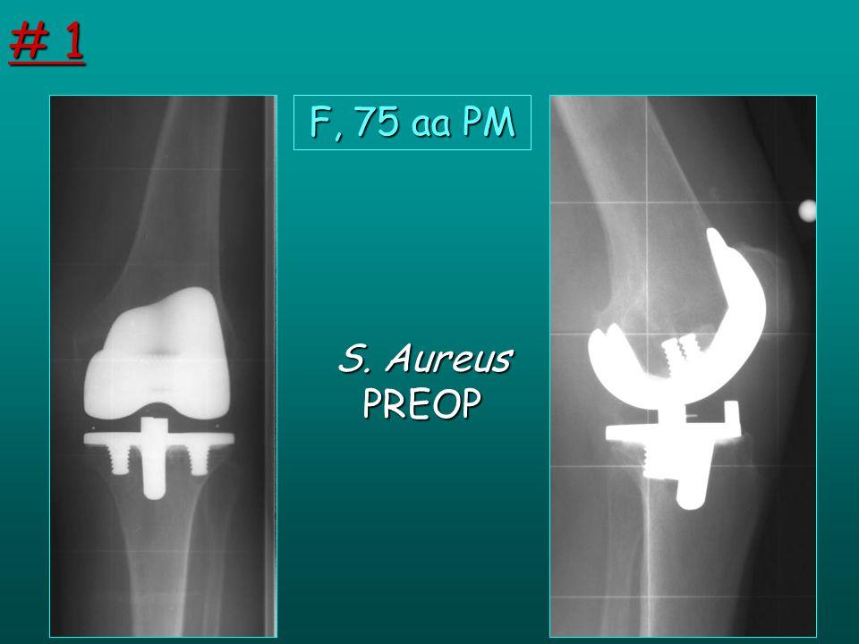 F, 75 aa PM S. Aureus PREOP # 1